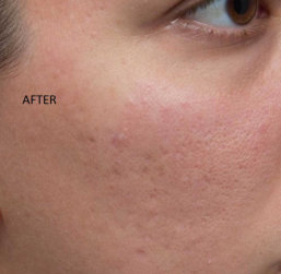 right cheek after treatment
