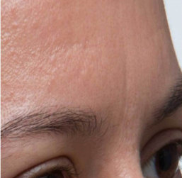 woman's forehead before treatment