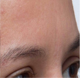 woman's forehead after treatment