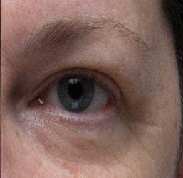 patient's left eye after treatment